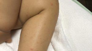 手足口病による発疹ができた娘の足の写真
